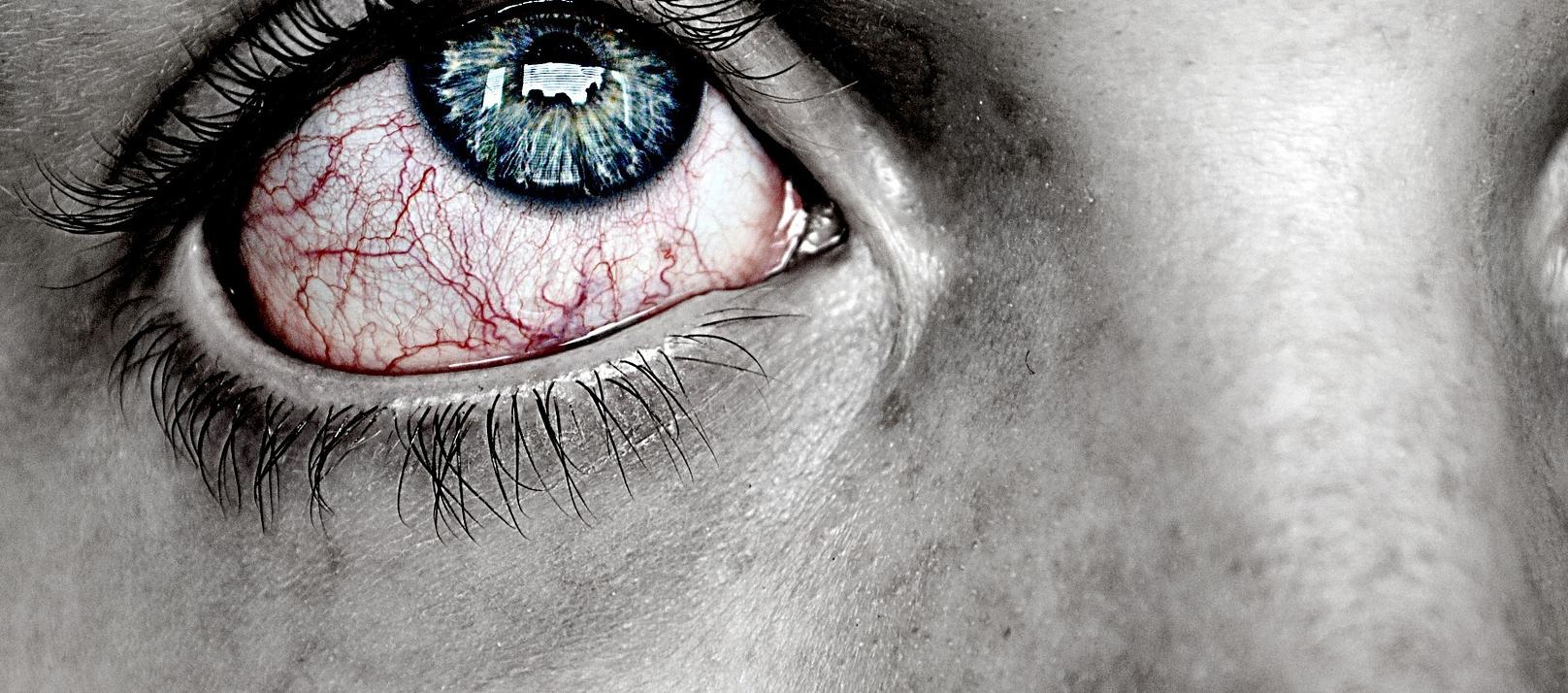 zaczerwienienie oka