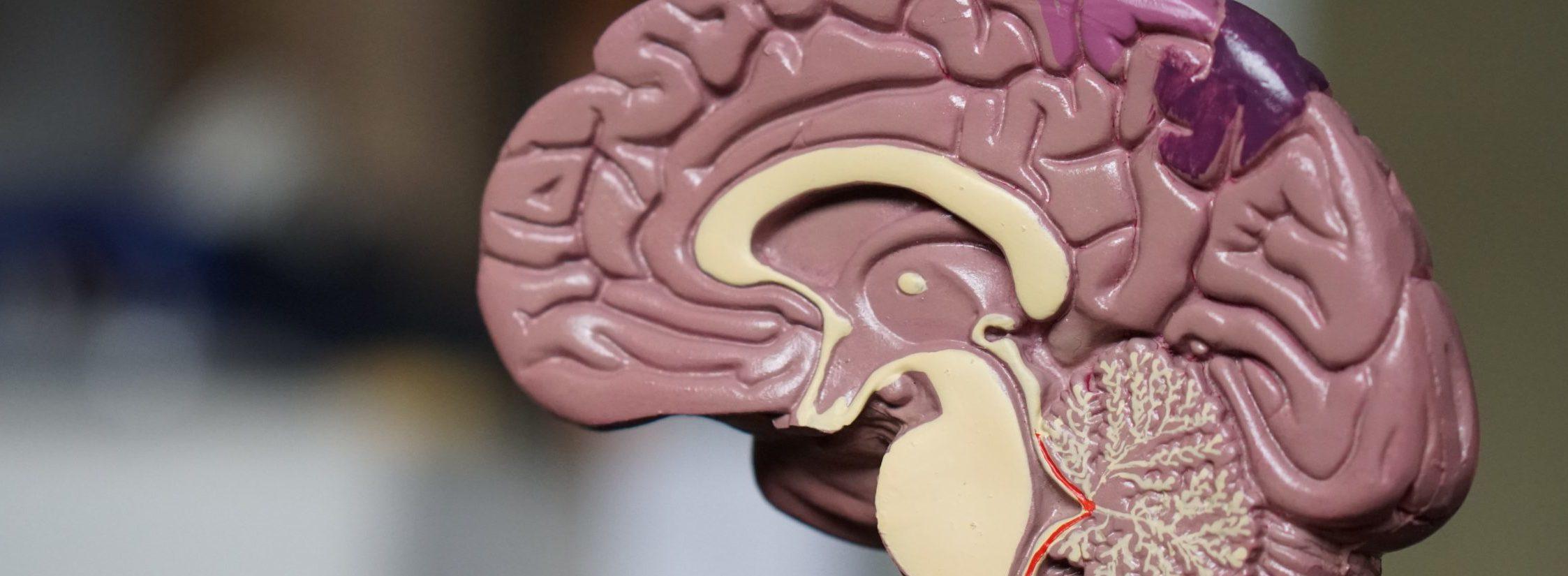 mózg w przekroju