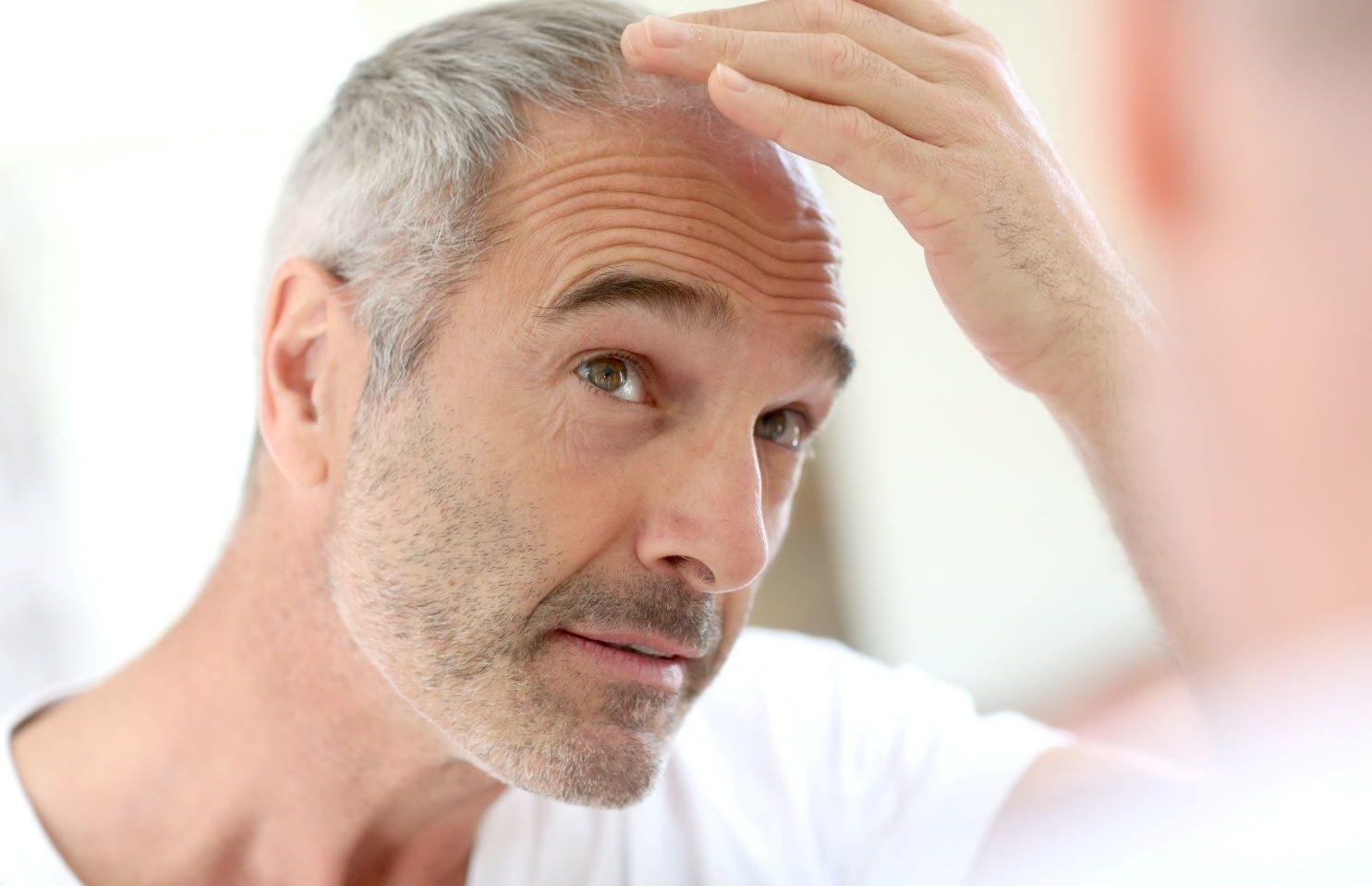 wypadanie włosów po COVID-19